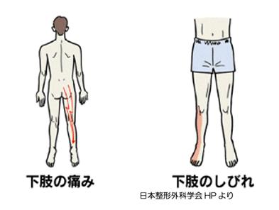 しびれ 原因 片足 足 の